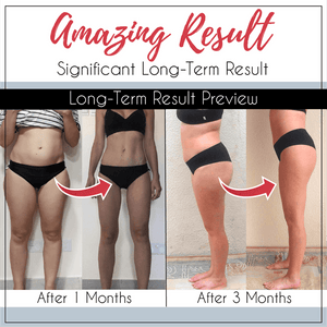 [ BUY1 FREE 1 🔥 ] TS™ SLEEPING BEAUTY LEGS SHAPER