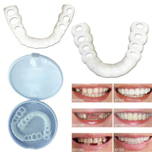 Load image into Gallery viewer, 【FREE GIFT🔥】TS™ PROFESSIONAL ORTHODONTIC BRACES