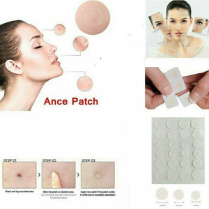 Fibroepithelial Polyp Removal Patch (36 pcs)