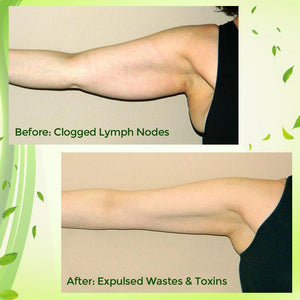 Natural Lymphatic Drainage Patch