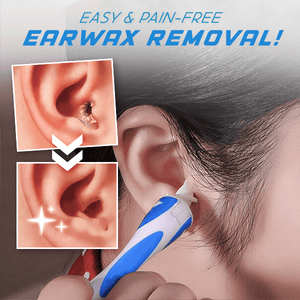 ProCare™ Soft Spiral Earwax Remover
