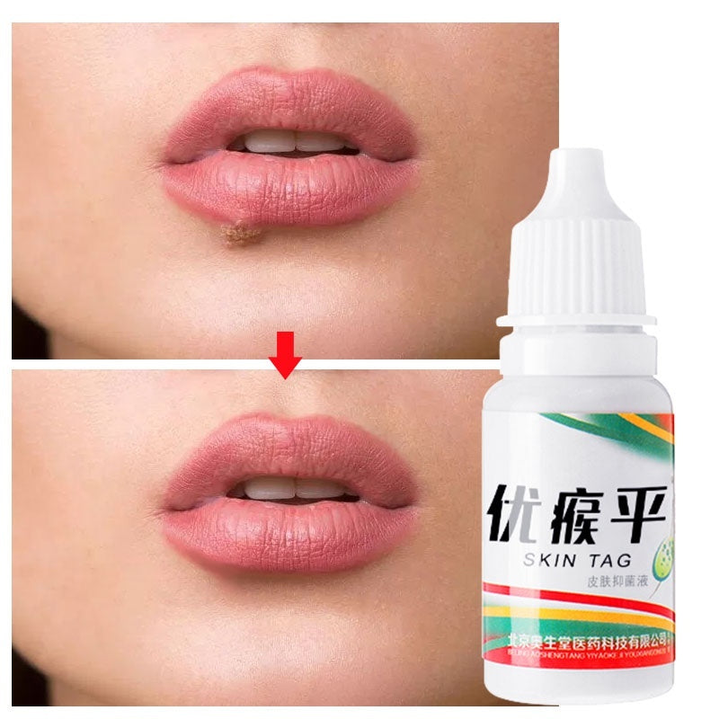 HOT SALE!Skin Tag Remover Warts Treatment Foot Corn Remover Plantar Warts Pomada De Verruga Foot Care Medical Plaster Ointment 5/10ml