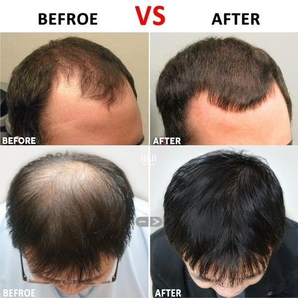 Beard Growth & Hair Regrowth Micro-needling Roller Anti Hair Loss Treatment Thinning Hair / Receding Hairline/ Bald Spots