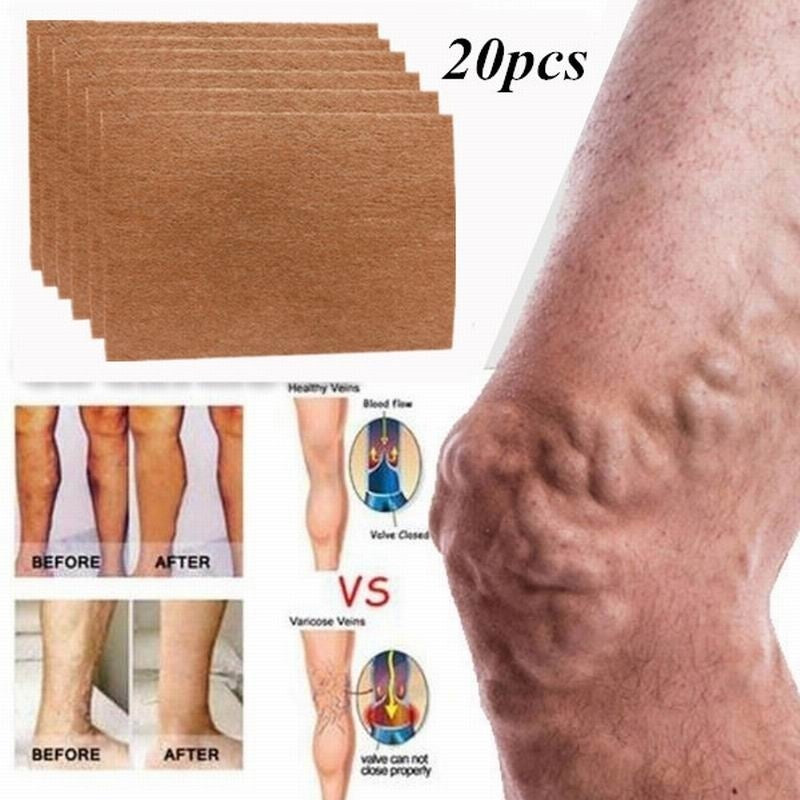Health Care 20pcs Spider Veins Men Body Herbal Patches Natural Varicose Veins Cure Patch Varicose Treatment Plaster