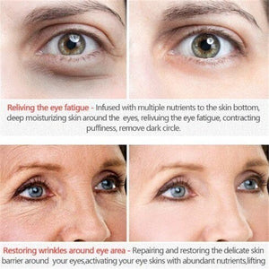 Eye Care Water Light Needle Eye Cream Moisturizing Remove Eye Bags Dark Circle Fat Granule Collageen Whitening Eyes Essential Cream Skin Care