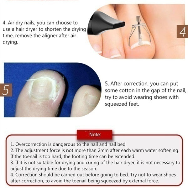Ingrown Toenail Corrector Correction Tool Nail Correction Kit Toe Clamp Stainless Steel Toenail Lifter Toes Treatment Pedicure Tool