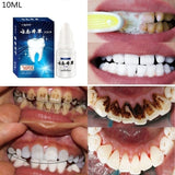 1 Bottle 10 G Natural Teeth Whitening Mouth Cleaning Oral Teeth Care Whitening Dental Bleaching Tools  mask
