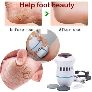 New Electric Reamer Skin Grinding Hard Skin Trimmer Dead Skin Pedicure Foot Care Tool Callus Removes Heel Calluses