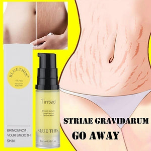 Best New Scar Stretch Marks Cream Repair cream Removal Acne Scar Stretch Marks Cream Fat Scar Striae Gravidarum Treatment Body Creams