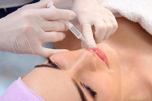 Face-lifting needle (a type of cosmetic surgery)