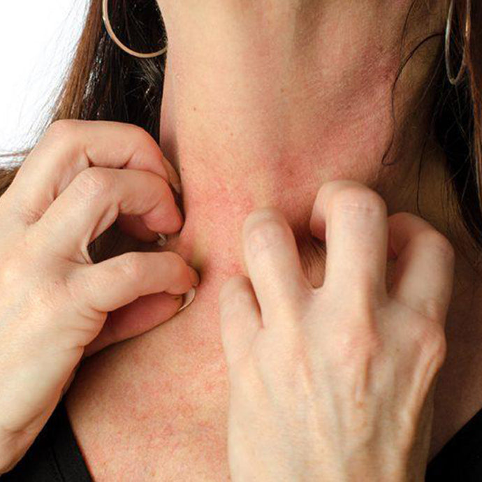 Is Eczema putting you at war with your own skin?