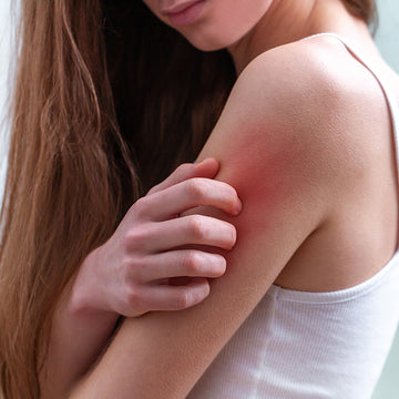Common treatments for Itchy skin