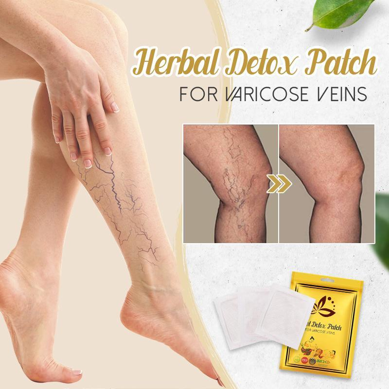 Herbal Detox Patch for Varicose Veins