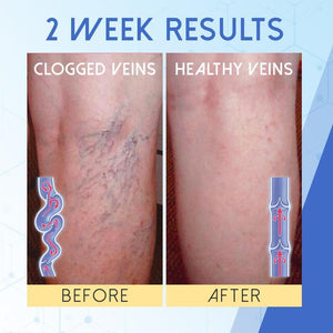 Blue Light Therapy Pen for Varicose Veins