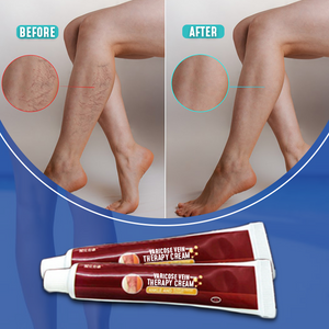 Varicose Vein Therapy Cream - Hazelnutway.us