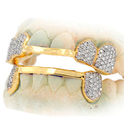 Custom Hand Prong Set Diamond Grill