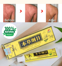 Load image into Gallery viewer, Psoriasis Natural Herbal Cream
