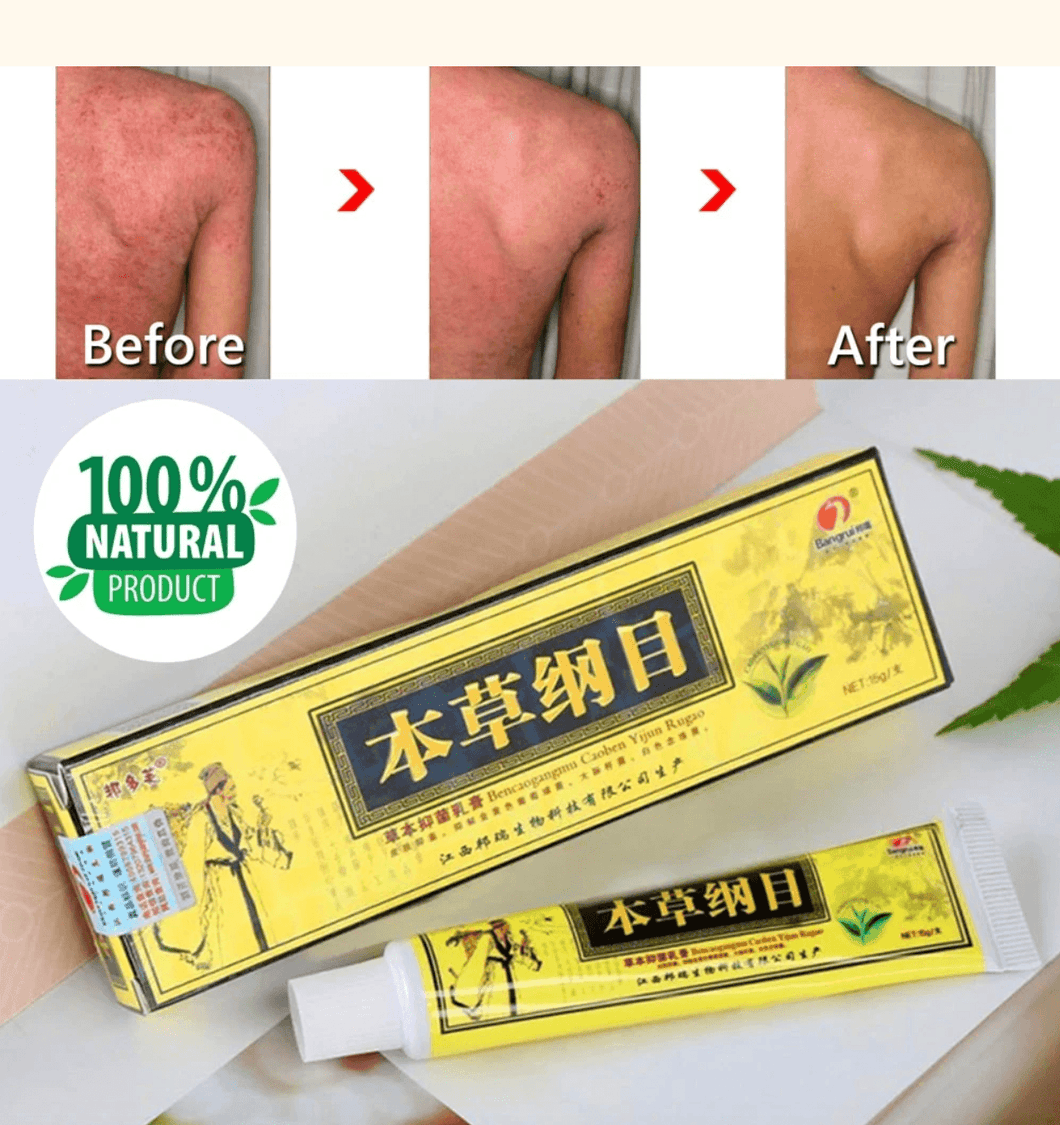 Psoriasis Natural Herbal Cream
