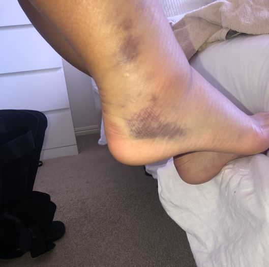 Our Champion - Selu Maama! Photo of her ankle sprain injury.
