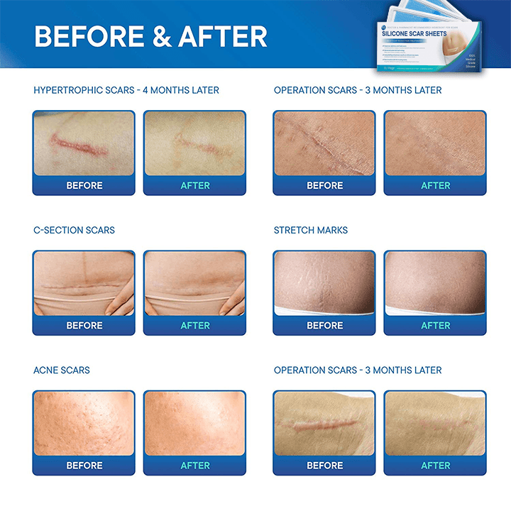 Scars Removal Silicone Sheets