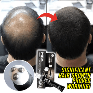 ReGrow™ 2-in-1 Hair Growth Serum Roller