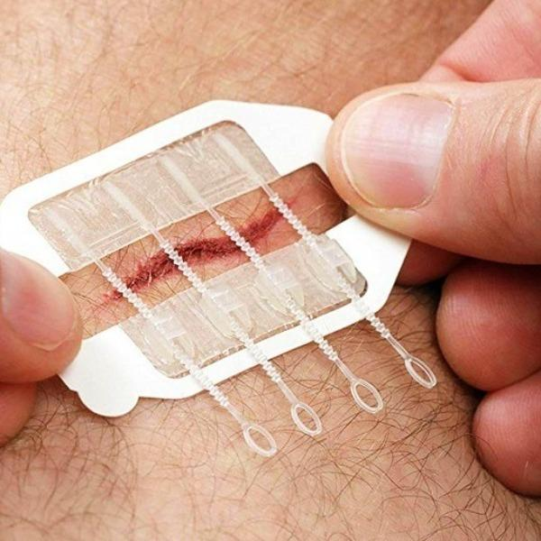 Needle-Free Tightening Suture Wound Band-Aid