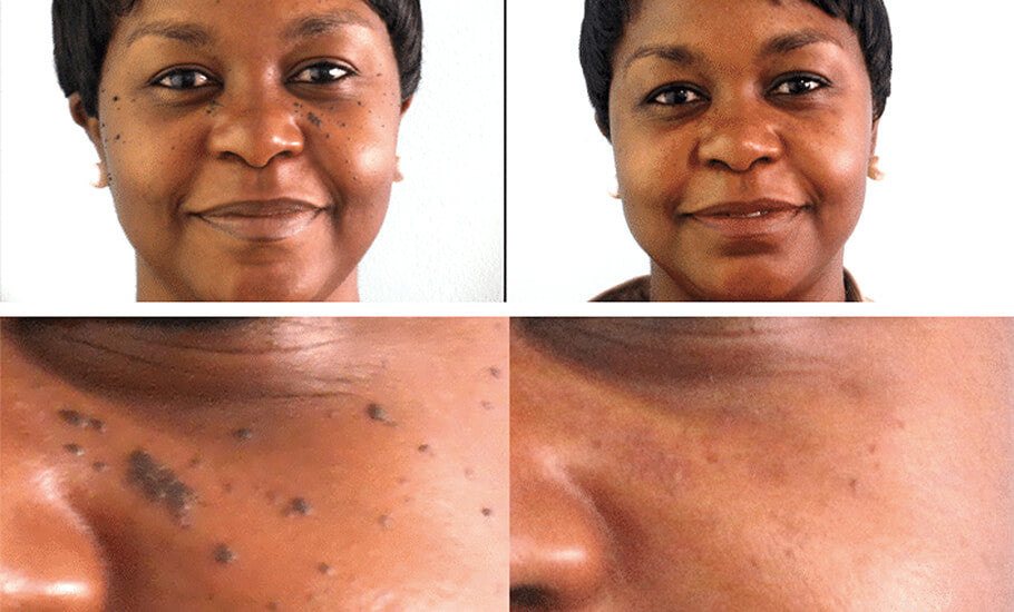 What is Perfec-Tone Mole Removal Service?