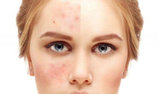 Restoring your skin when you work in Customer Service