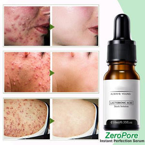 ZeroPore Instant Perfection Serum