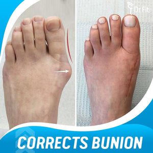 Dr.Fit Silicone Bunion Corrector