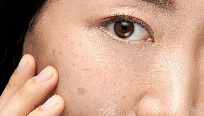 hyperpigmentation: behind the brown spot
