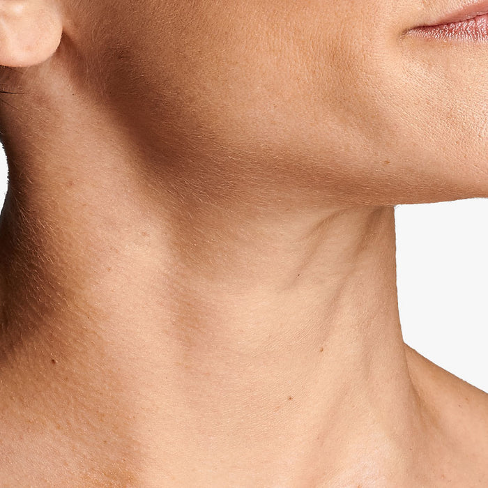 why does neck skin sag?