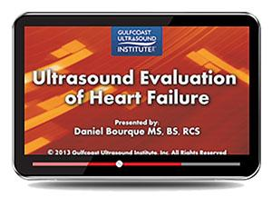 Gulfcoast Ultrasound Evaluation of Heart Failure (Videos+PDFs) | Medical Video Courses.