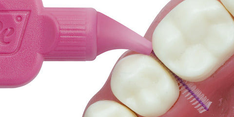 Use of intedental brushes is the most efficient way to remove plaque between the teeth.