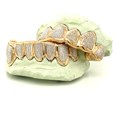 seattle gold grillz buy now