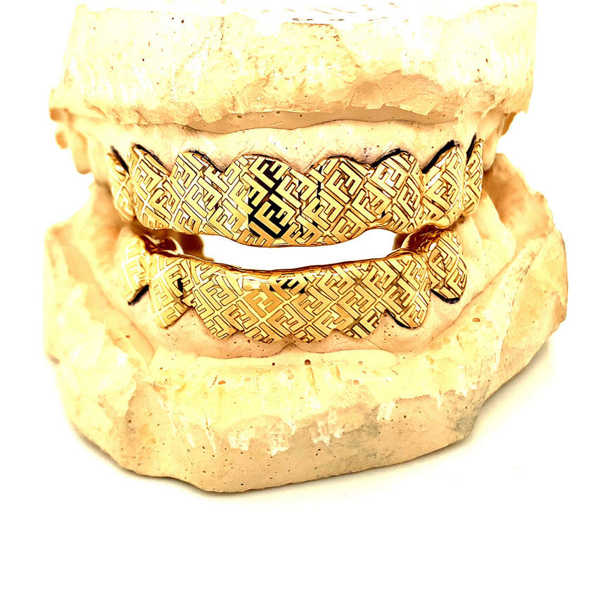 Diamond Cut Grillz by Seattle Gold Grills