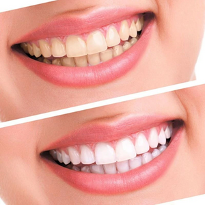 All-In-One Teeth Whitening Kit (Buy 1 Get 1 FREE)