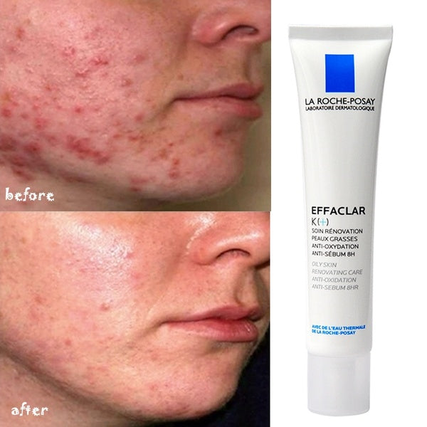 LA ROCHE-POSAY Clear Acne Cleansing Serum 20/30/40ml K Cream Clear Blackhead Cleansing pores Oil control hydration Repair acne