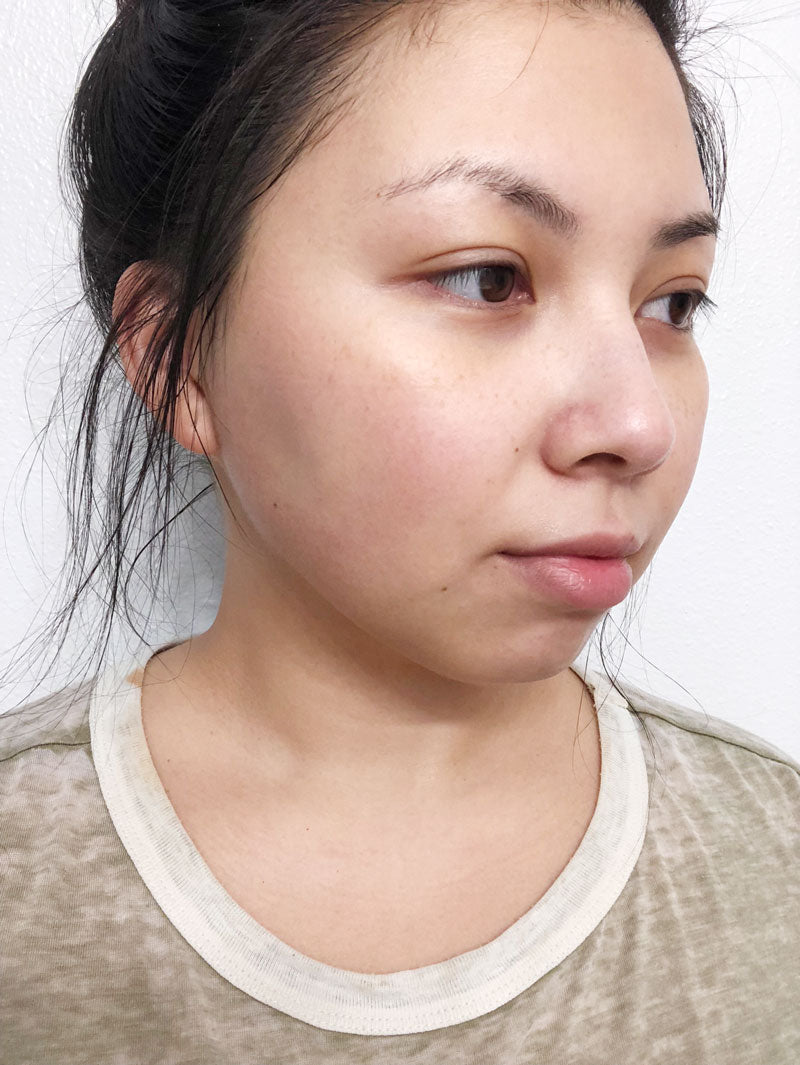 Dr Jart Clearing Mask before- M Review 66