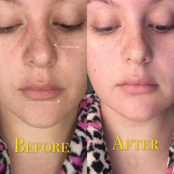 rosa-dewytree-ginseng-before-and-after