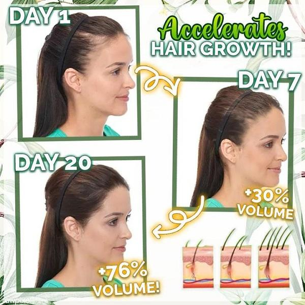 7X Speedy Growth Hair Serum