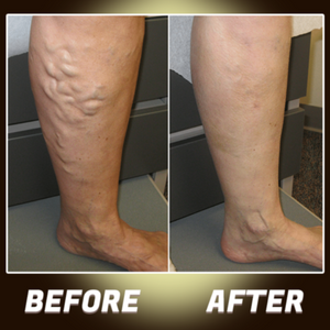 Varicose Veins Herbal Healing Patches