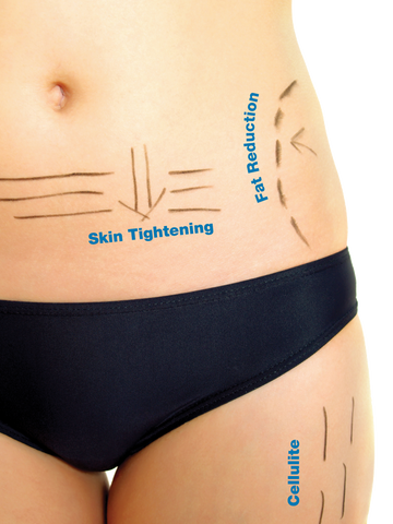 3d liposuction for fast easy weight loss