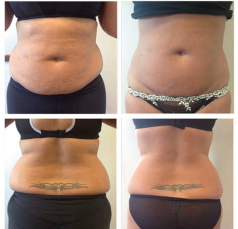 3d liposuction leeds
