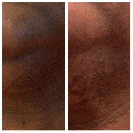 Face Moisturizer 2oz - 100 % Aloe Base - Collagen - Organic Emu Oil/ Tamanu & Sea Buckthorn - See Before and After Pictures