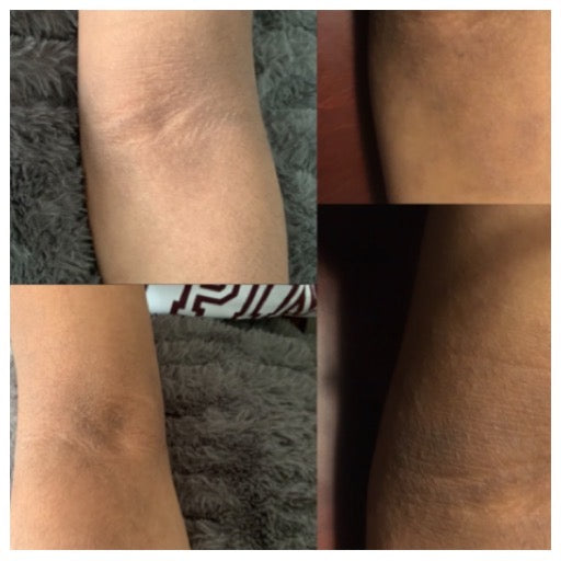 Magnesium Nut Oil Free Body Butter *For Nina* 2oz - Hyaluronic Acid - Manuka Honey - Zinc- Organic Emu Oil - Face & Body - Helps with Eczema and Dry Skin! See Before and After Pictures!