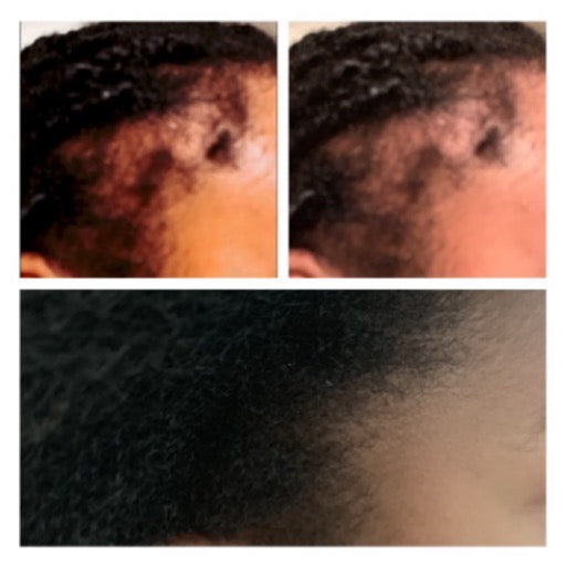 Leave In Conditioner *Hair of Wool Sea Moss Leave In Conditioner* 4oz - Hyaluronic Acid - Organic Oils of: Saw Palmetto - Flax Seed. Promotes Hair Growth! See Before and After Pictures!