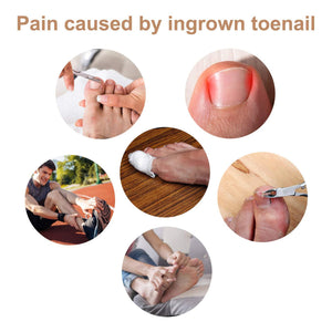 Glue Free Toenail Patch (10pcs)