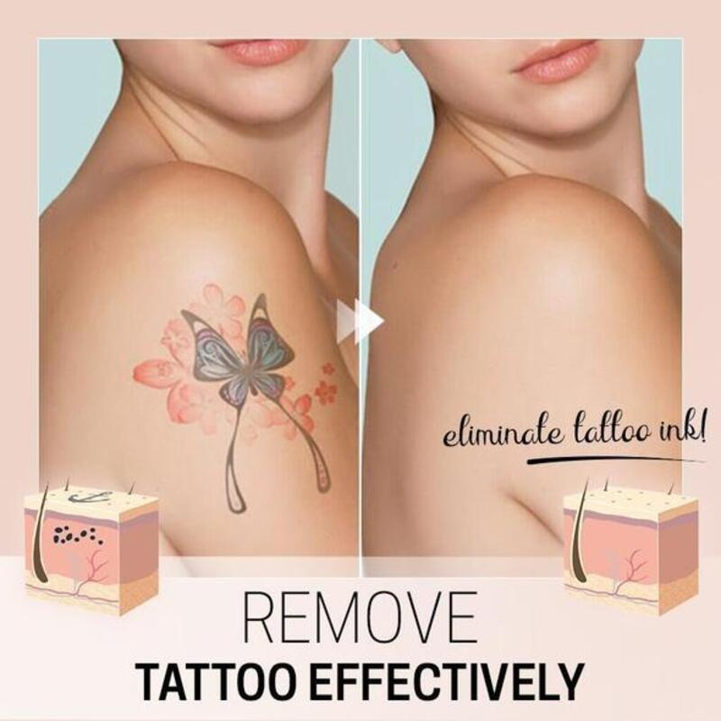 TatEraser™ Tattoo Removal Cream