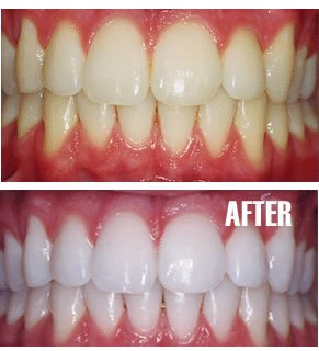 PROFESSIONAL CUSTOM TRAY TEETH WHITENING SYSTEM (TRAYS ONLY)
